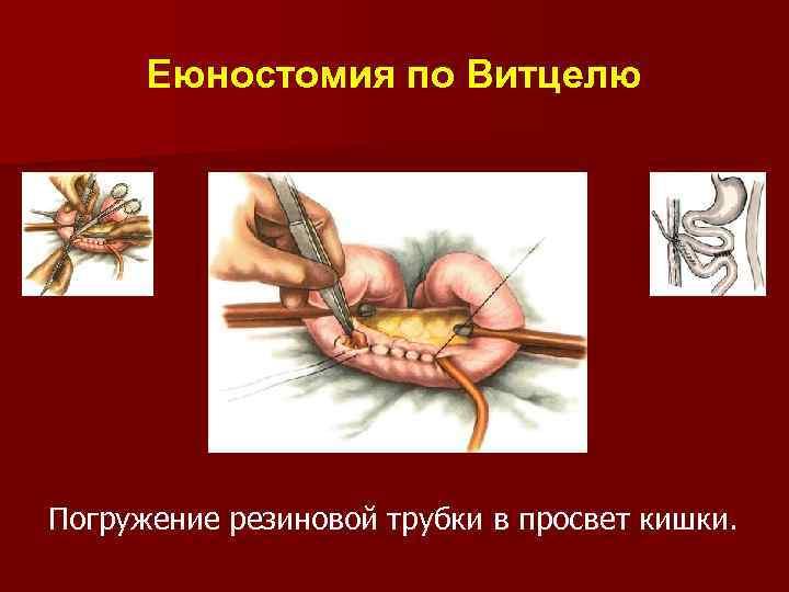 Еюностомия по Витцелю Погружение резиновой трубки в просвет кишки.