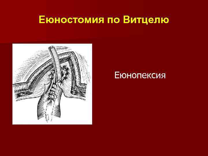 Еюностомия по Витцелю Еюнопексия
