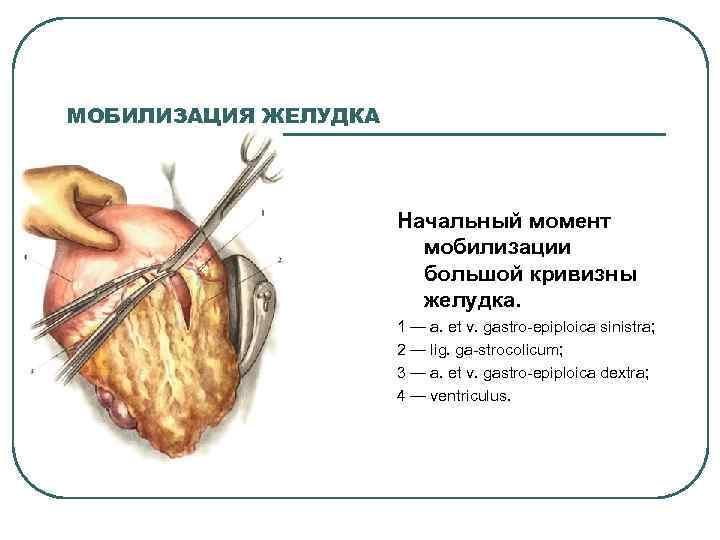 МОБИЛИЗАЦИЯ ЖЕЛУДКА Начальный момент мобилизации большой кривизны желудка. 1 — a. et v. gastro