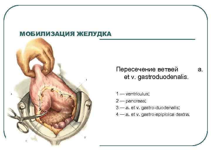МОБИЛИЗАЦИЯ ЖЕЛУДКА Пересечение ветвей et v. gastroduodenalis. 1 — ventriculus; 2 — pancreas; 3