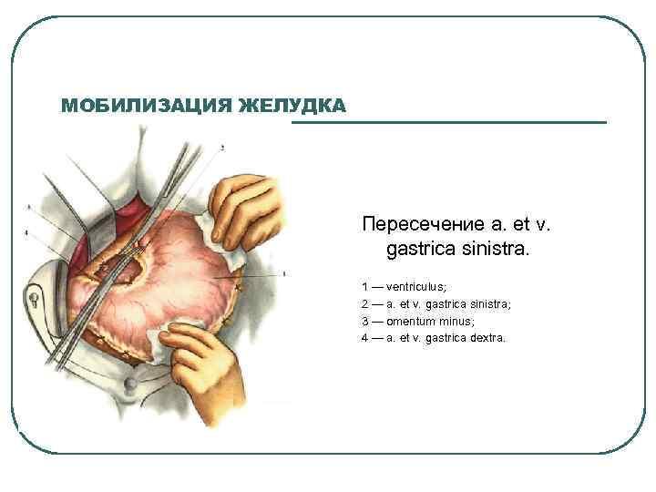 МОБИЛИЗАЦИЯ ЖЕЛУДКА Пересечение а. et v. gastrica sinistra. 1 — ventriсulus; 2 — a.