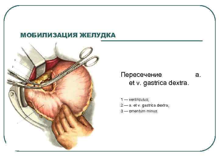 МОБИЛИЗАЦИЯ ЖЕЛУДКА Пересечение a. et v. gastrica dextra. 1 — ventriculus; 2 — a.