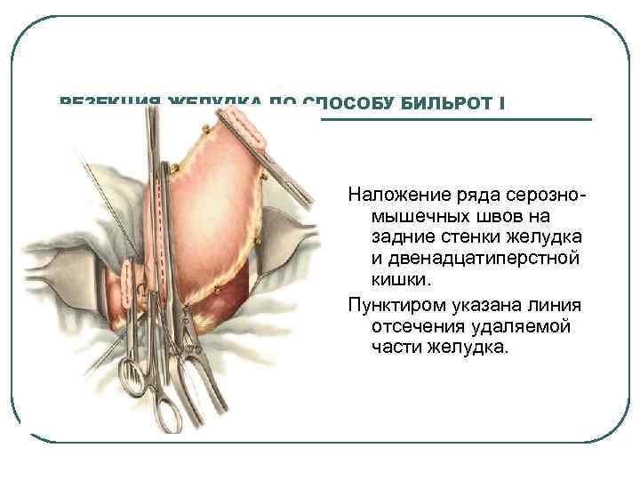 РЕЗЕКЦИЯ ЖЕЛУДКА ПО СПОСОБУ БИЛЬРОТ I Наложение ряда серозно мышечных швов на задние стенки