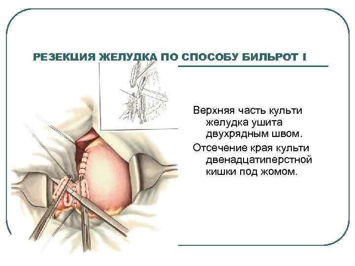 РЕЗЕКЦИЯ ЖЕЛУДКА ПО СПОСОБУ БИЛЬРОТ I Верхняя часть культи желудка ушита двухрядным швом. Отсечение