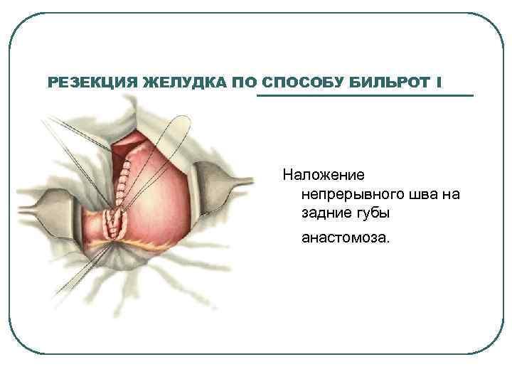РЕЗЕКЦИЯ ЖЕЛУДКА ПО СПОСОБУ БИЛЬРОТ I Наложение непрерывного шва на задние губы анастомоза.