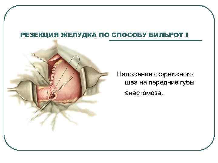 РЕЗЕКЦИЯ ЖЕЛУДКА ПО СПОСОБУ БИЛЬРОТ I Наложение скорняжного шва на передние губы анастомоза.