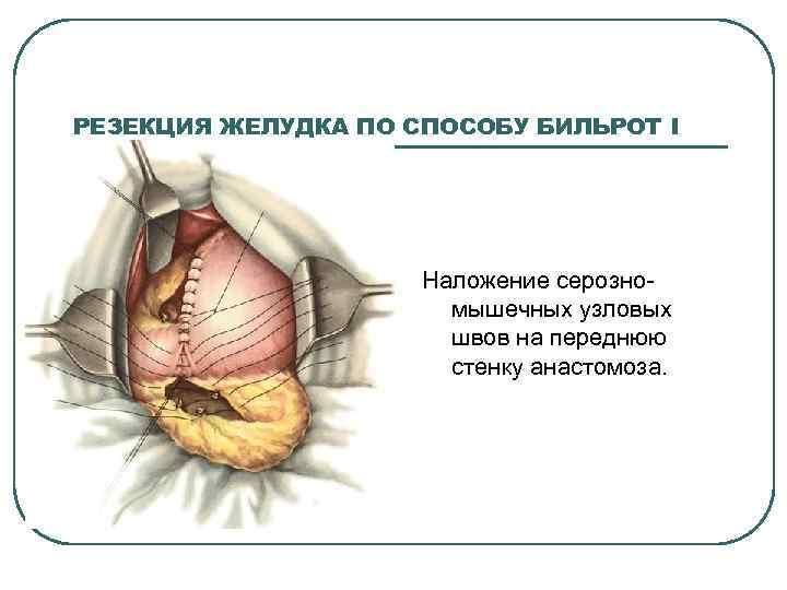 РЕЗЕКЦИЯ ЖЕЛУДКА ПО СПОСОБУ БИЛЬРОТ I Наложение серозно мышечных узловых швов на переднюю стенку