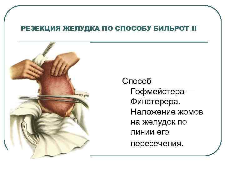 РЕЗЕКЦИЯ ЖЕЛУДКА ПО СПОСОБУ БИЛЬРОТ II Способ Гофмейстера — Финстерера. Наложение жомов на желудок