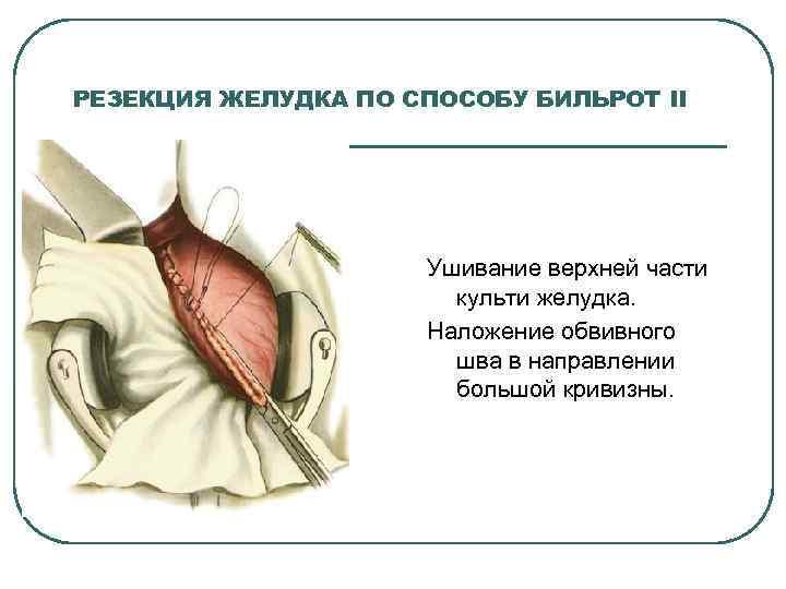 РЕЗЕКЦИЯ ЖЕЛУДКА ПО СПОСОБУ БИЛЬРОТ II Ушивание верхней части культи желудка. Наложение обвивного шва