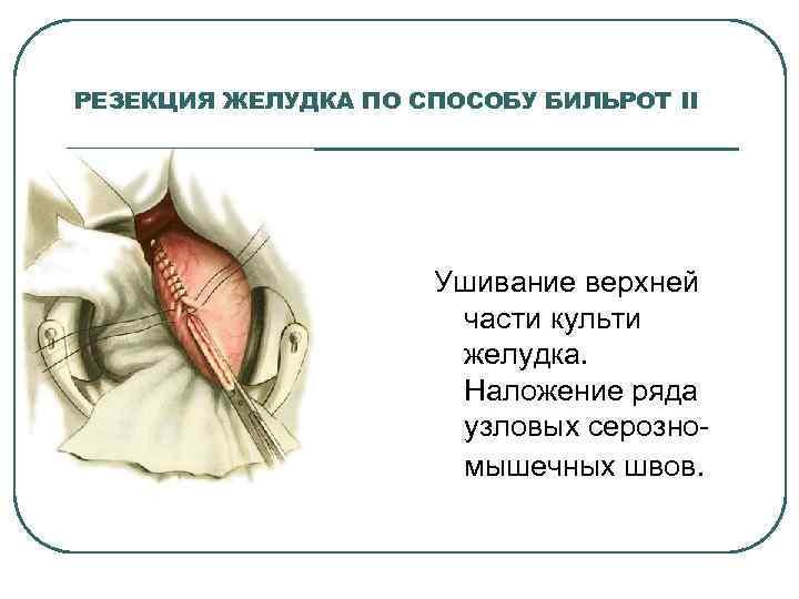 РЕЗЕКЦИЯ ЖЕЛУДКА ПО СПОСОБУ БИЛЬРОТ II Ушивание верхней части культи желудка. Наложение ряда узловых