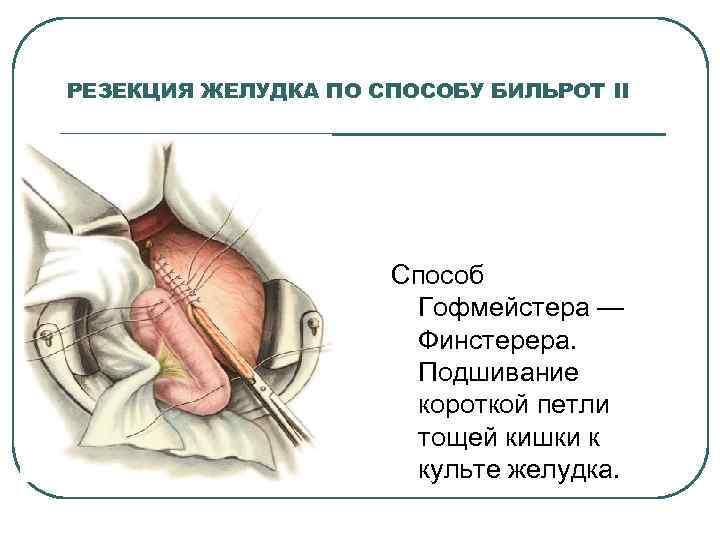 РЕЗЕКЦИЯ ЖЕЛУДКА ПО СПОСОБУ БИЛЬРОТ II Способ Гофмейстера — Финстерера. Подшивание короткой петли тощей