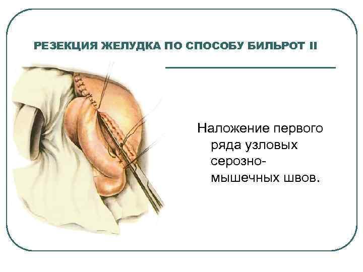 РЕЗЕКЦИЯ ЖЕЛУДКА ПО СПОСОБУ БИЛЬРОТ II Наложение первого ряда узловых серозно мышечных швов.