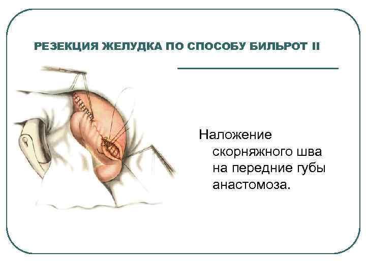 РЕЗЕКЦИЯ ЖЕЛУДКА ПО СПОСОБУ БИЛЬРОТ II Наложение скорняжного шва на передние губы анастомоза.