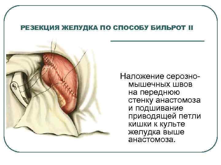 РЕЗЕКЦИЯ ЖЕЛУДКА ПО СПОСОБУ БИЛЬРОТ II Наложение серозно мышечных швов на переднюю стенку анастомоза