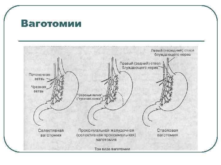 Ваготомии
