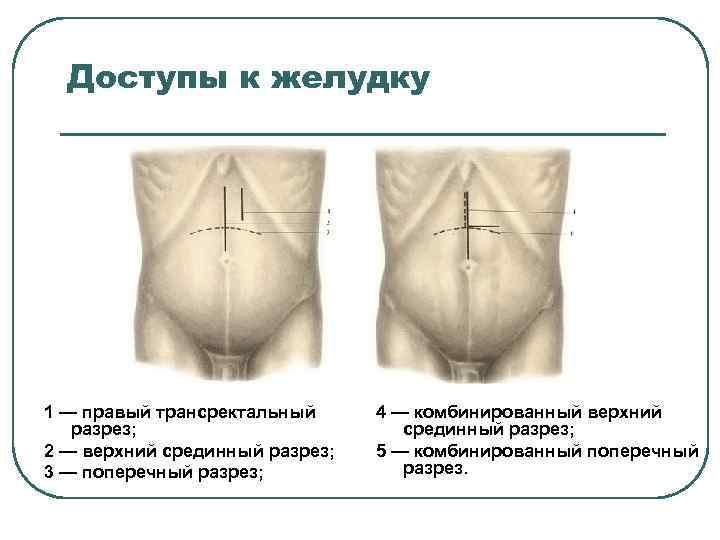Доступы к желудку 1 — правый трансректальный разрез; 2 — верхний срединный разрез; 3