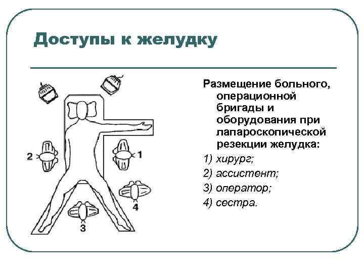 Доступы к желудку Размещение больного, операционной бригады и оборудования при лапароскопической резекции желудка: 1)