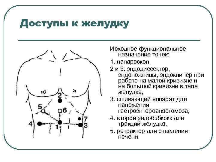 Доступы к желудку Исходное функциональное назначение точек: 1. лапароскоп, 2 и 3. эндодиссектор, эндоножницы,