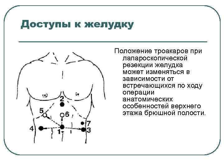 Доступы к желудку Положение троакаров при лапароскопической резекции желудка может изменяться в зависимости от