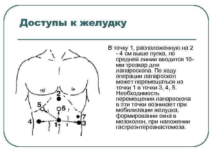 Доступы к желудку В точку 1, расположенную на 2 4 см выше пупка, по