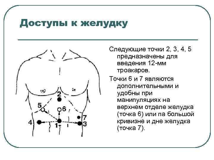 Доступы к желудку Следующие точки 2, 3, 4, 5 предназначены для введения 12 мм