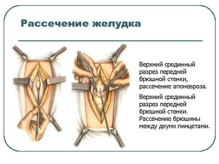 Рассечение желудка Верхний срединный разрез передней брюшной стенки, рассечение апоневроза. Верхний срединный разрез передней