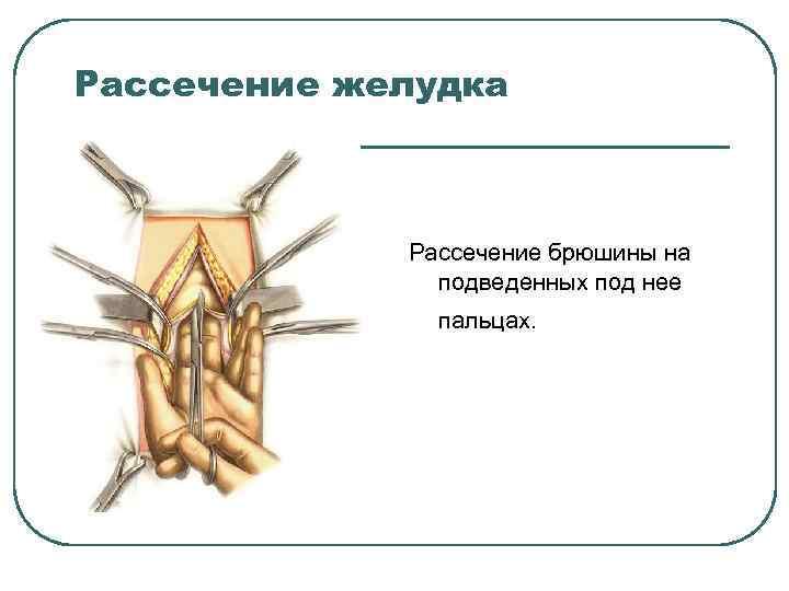 Рассечение желудка Рассечение брюшины на подведенных под нее пальцах.