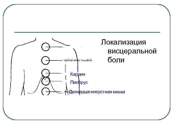 Локализация висцеральной боли Кардия Пилорус Двенадцатиперстная кишка