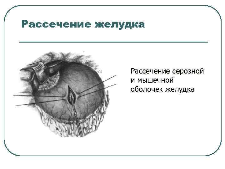 Рассечение желудка Рассечение серозной и мышечной оболочек желудка