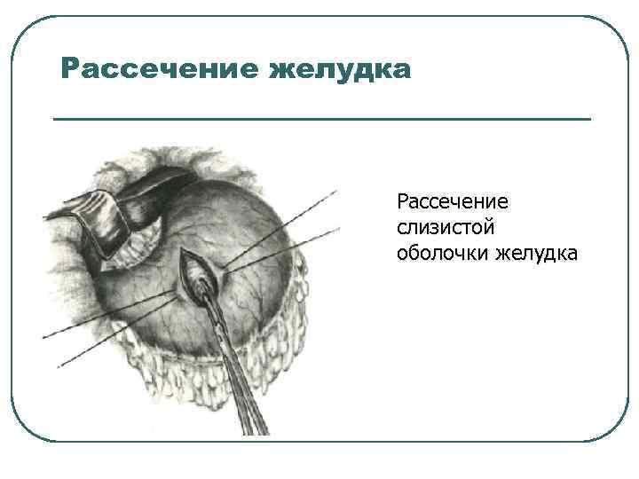 Рассечение желудка Рассечение слизистой оболочки желудка