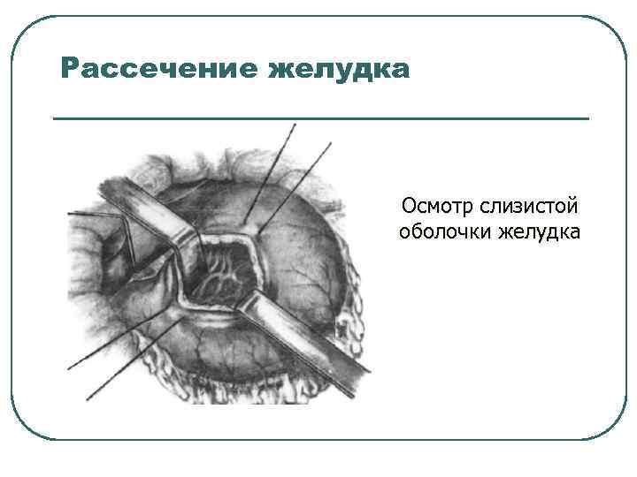 Рассечение желудка Осмотр слизистой оболочки желудка