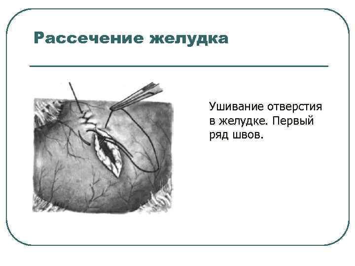 Рассечение желудка Ушивание отверстия в желудке. Первый ряд швов.