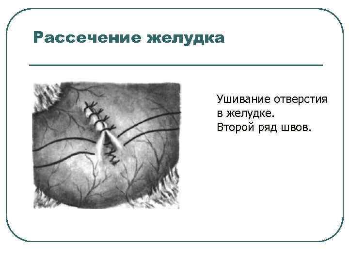 Рассечение желудка Ушивание отверстия в желудке. Второй ряд швов.