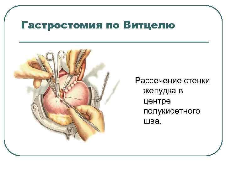 Гастростомия по Витцелю Рассечение стенки желудка в центре полукисетного шва.