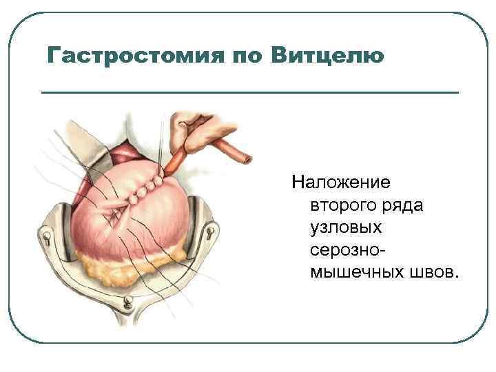 Гастростомия по Витцелю Наложение второго ряда узловых серозно мышечных швов.