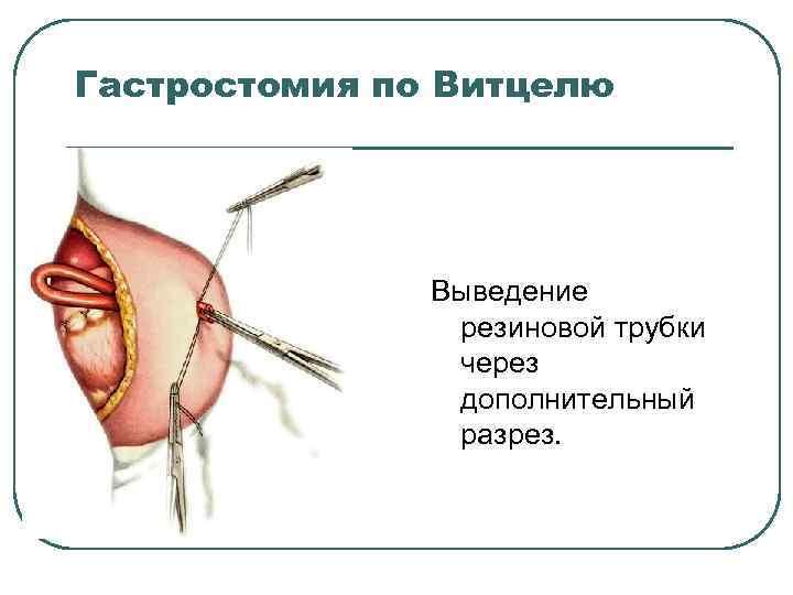 Гастростомия по Витцелю Выведение резиновой трубки через дополнительный разрез.
