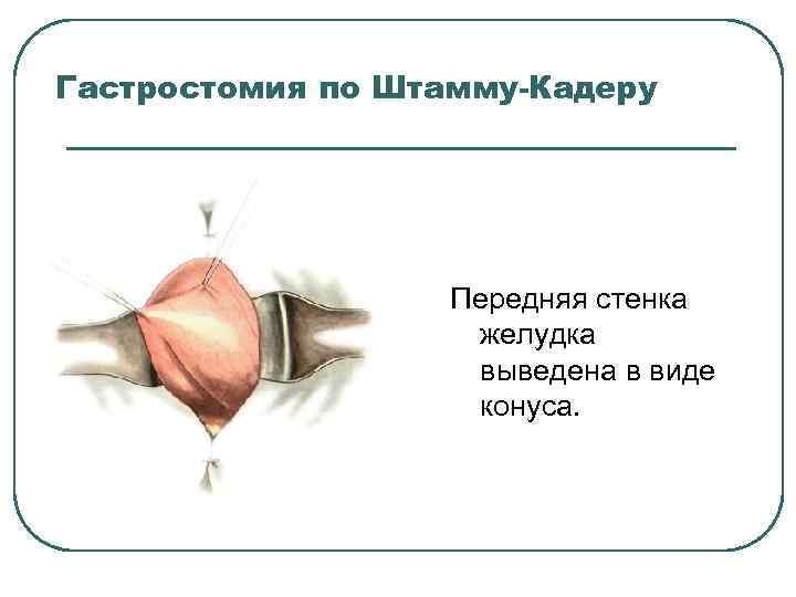 Гастростомия по Штамму-Кадеру Передняя стенка желудка выведена в виде конуса.