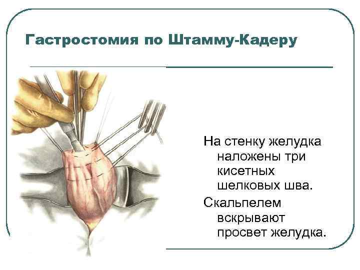 Гастростомия по Штамму-Кадеру На стенку желудка наложены три кисетных шелковых шва. Скальпелем вскрывают просвет