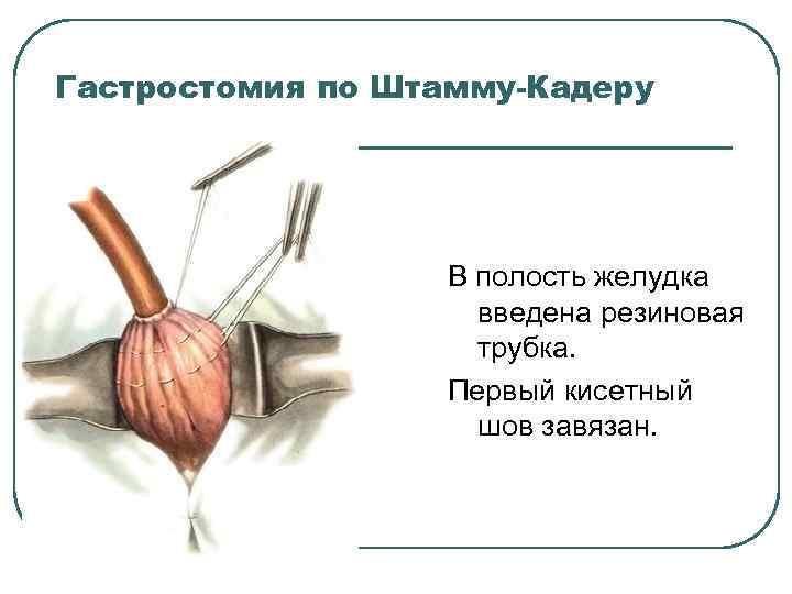 Гастростомия по Штамму-Кадеру В полость желудка введена резиновая трубка. Первый кисетный шов завязан.