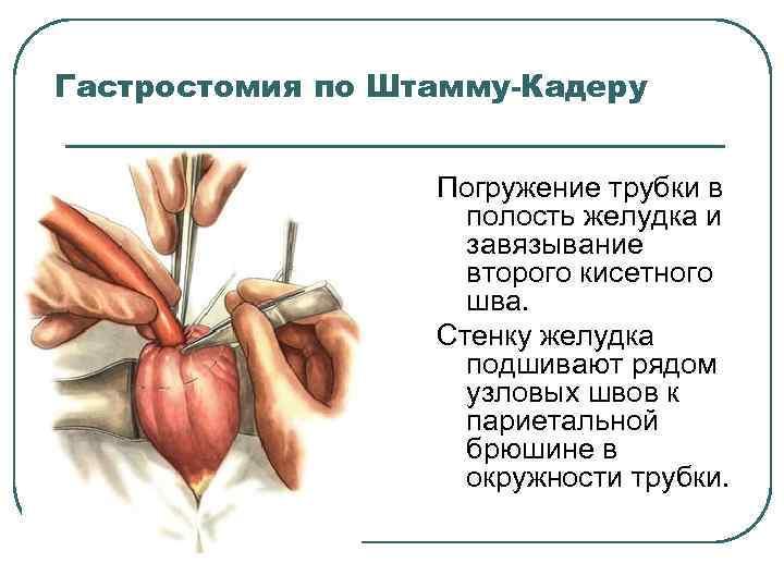 Гастростомия по Штамму-Кадеру Погружение трубки в полость желудка и завязывание второго кисетного шва. Стенку