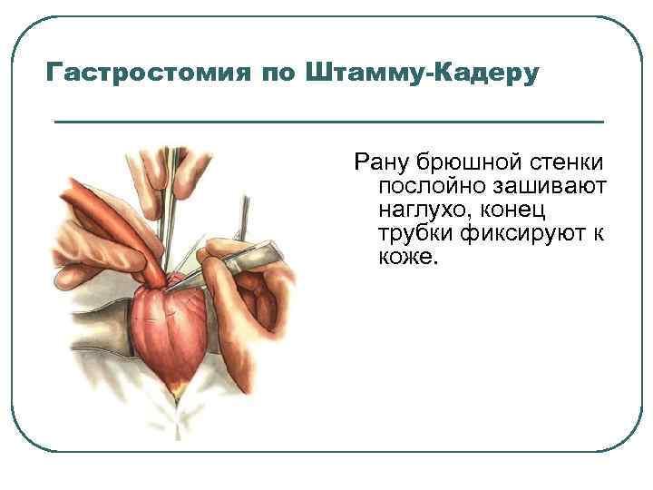 Гастростомия по Штамму-Кадеру Рану брюшной стенки послойно зашивают наглухо, конец трубки фиксируют к коже.
