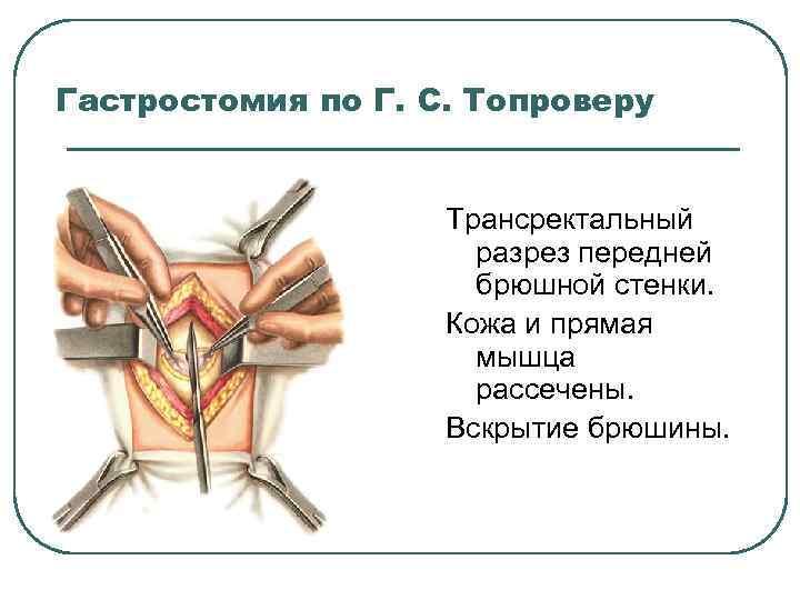 Гастростомия по Г. С. Топроверу Трансректальный разрез передней брюшной стенки. Кожа и прямая мышца