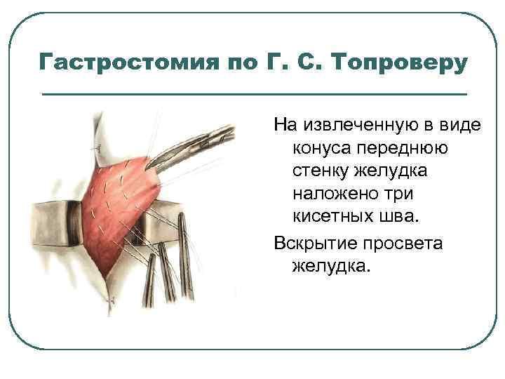 Гастростомия по Г. С. Топроверу На извлеченную в виде конуса переднюю стенку желудка наложено