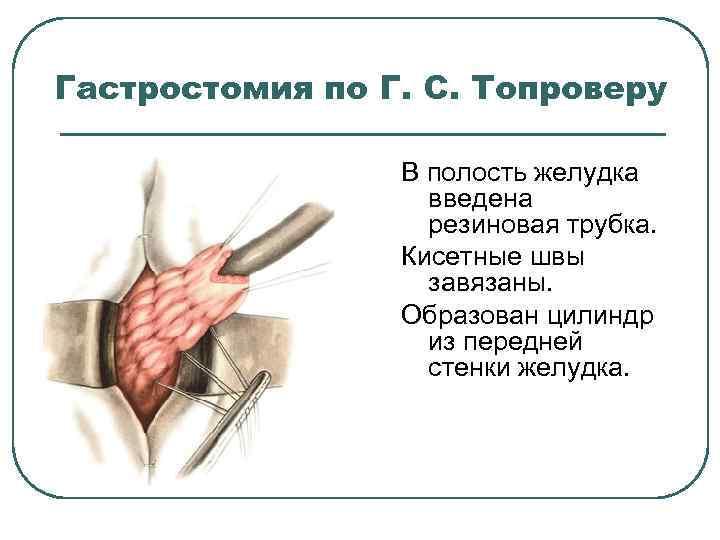 Гастростомия по Г. С. Топроверу В полость желудка введена резиновая трубка. Кисетные швы завязаны.