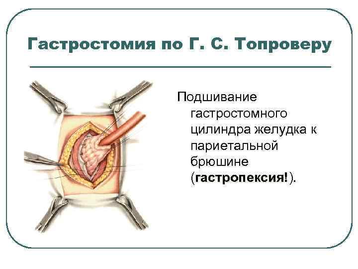 Гастростомия по Г. С. Топроверу Подшивание гастростомного цилиндра желудка к париетальной брюшине (гастропексия!). гастропексия!