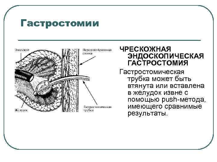 Гастростомии ЧРЕСКОЖНАЯ ЭНДОСКОПИЧЕСКАЯ ГАСТРОСТОМИЯ Гастростомическая трубка может быть втянута или вставлена в желудок извне