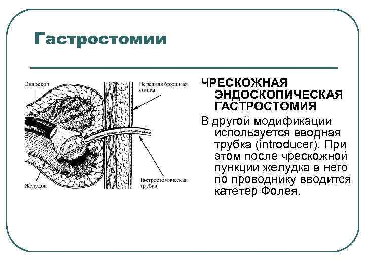 Гастростомии ЧРЕСКОЖНАЯ ЭНДОСКОПИЧЕСКАЯ ГАСТРОСТОМИЯ В другой модификации используется вводная трубка (introducer). При этом после