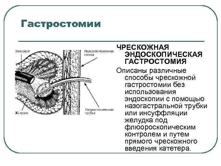 Гастростомии ЧРЕСКОЖНАЯ ЭНДОСКОПИЧЕСКАЯ ГАСТРОСТОМИЯ Описаны различные способы чрескожной гастростомии без использования эндоскопии с помощью