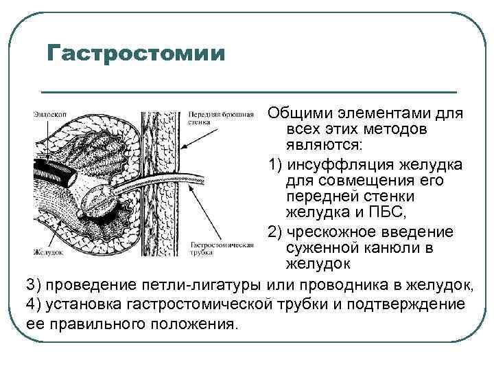 Гастростомии Общими элементами для всех этих методов являются: 1) инсуффляция желудка для совмещения его