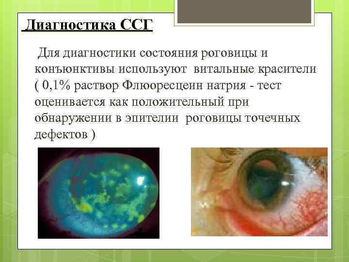 Диагностика ССГ Для диагностики состояния роговицы и конъюнктивы используют витальные красители ( 0,